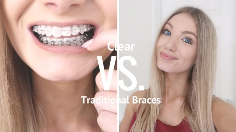 Clear Aligners and Braces