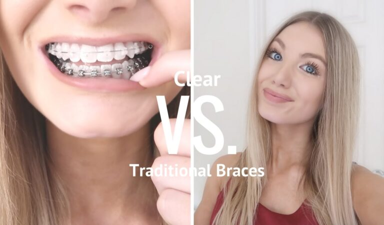 5 Differences Between Clear Aligners and Braces