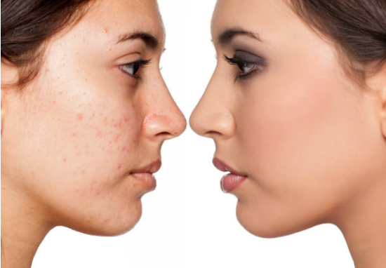 How Can I Remove Pimples From My Oily Face